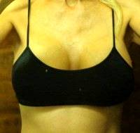 Average cost for breast implants pictures