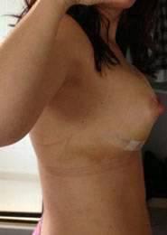 Price for breast implants in California