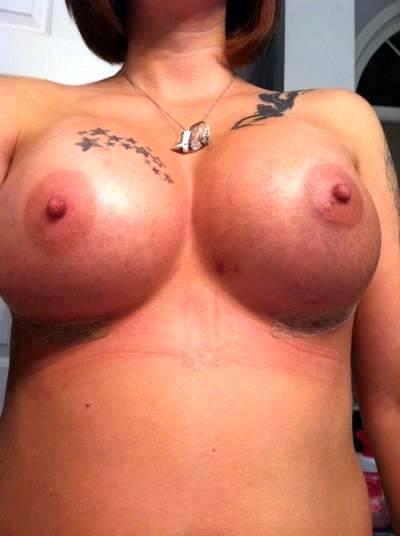 Doctor Justin Perron Breast Augmentation Procedure