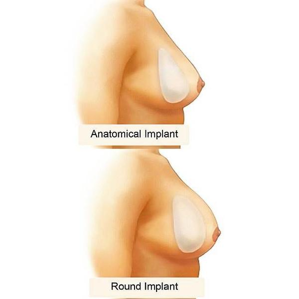 Round And Anatomical Breast Implants