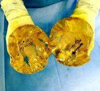 Saline Implants Photos